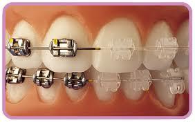 ortodoncia metal-balco